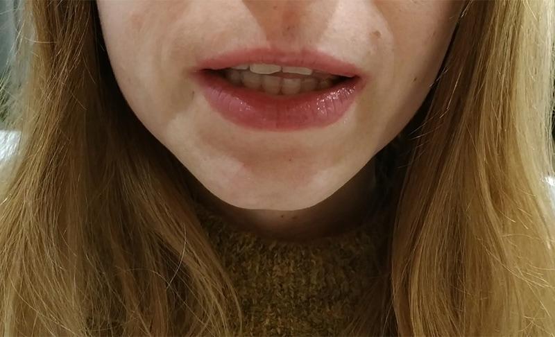Napieranie na zęby podczas połykania