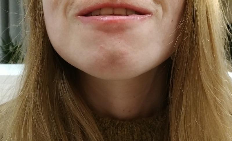 Odchylenie brody
