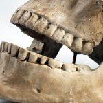 Anatomia – staw skroniowo-żuchwowy okiem logopedy