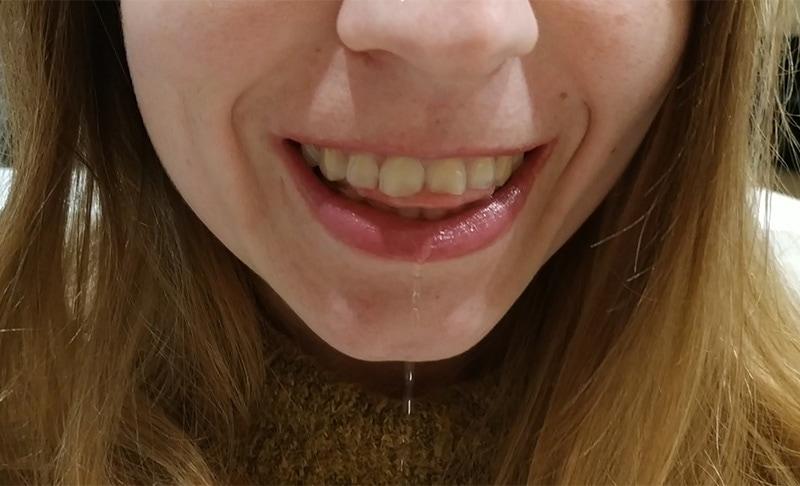 Połykanie z językiem między zębami