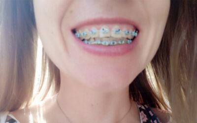 Logopeda z aparatem ortodontycznym